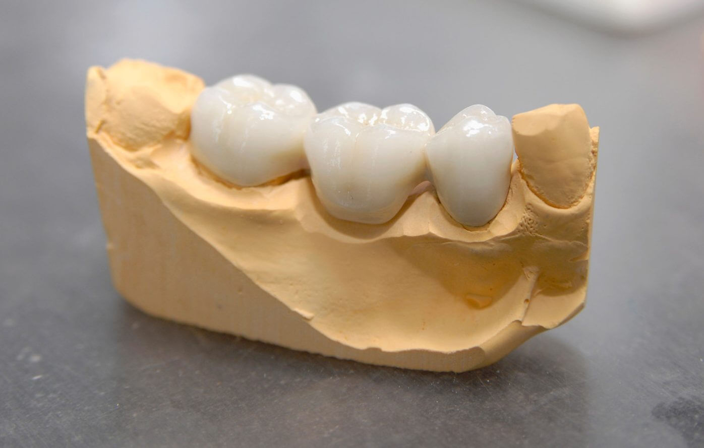 Dantų protezavimas cirkonio keramika