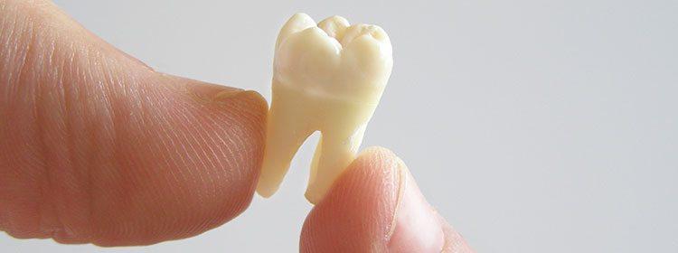 danties rovimas