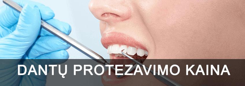 dantų protezavimo kaina