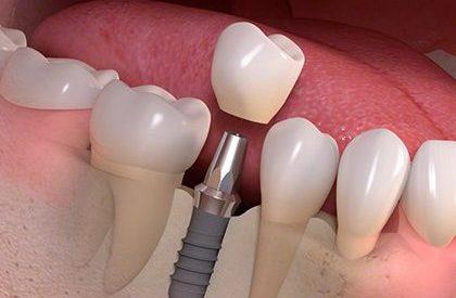 protezavimas ant implantu