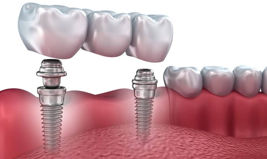 Dantų implantai Šiauliuose