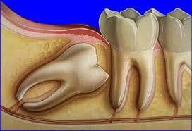 protinio danties rovimas
