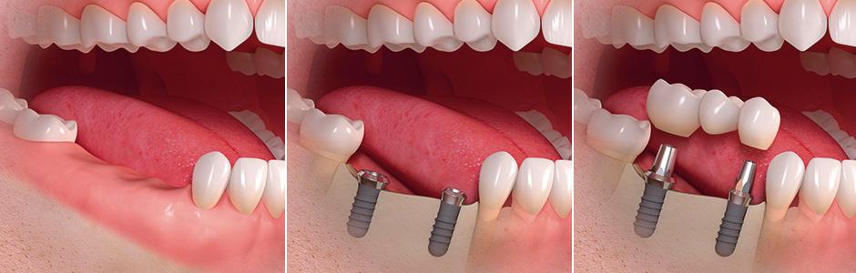 dantų implantai siauliai