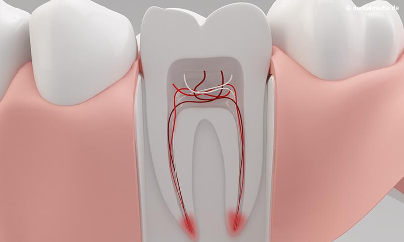 Dantų-kanalų-gydymas